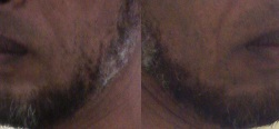 oportaldateologia/barba.jpg